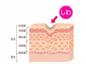 糖化 酸化 食べ物 コラーゲン繊維