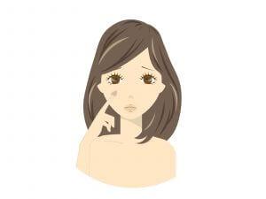 50代女性 シミ 肝斑 老人性色素斑 脂漏性角化症 ターンオーバの乱れ