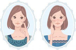 シミ 肝斑 シミ対策