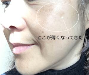 美肌 50代女性 美白化粧品 ディセンシア saeru