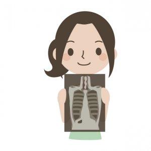 50代女性 骨粗しょう症 葉酸 ビタミンD カルシウム