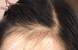 50代女性 薄毛 山田養蜂場 RJ薬用地肌ケアエッセンス 発毛 育毛
