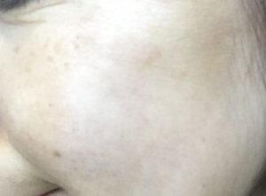 50代女性 肝斑 シミ MIMC 美白コンシーラ その3