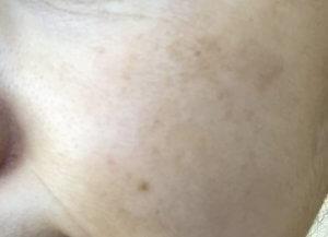 50代女性 肝斑 シミ MIMC 美白コンシーラ その1