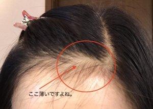 山田養蜂場 RJ地肌ケアエッセンス 育毛剤 ローヤルゼリー 使用前の髪の状態写真