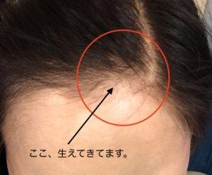 山田養蜂場 RJ地肌ケアエッセンス 育毛剤 ローヤルゼリー 使用後の髪の状態写真