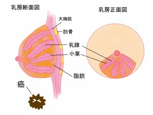 乳がん検診 マンモグラフィー 超音波 触診