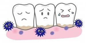 50代女性の8割が歯周病 糖尿病・動脈硬化・認知症 予防歯科