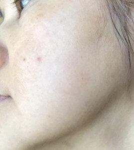 50代女性 MIMC化粧品 美白コンシーラ 敏感肌におすすめ