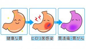 50代女性 ロイテリ菌 ピロリ菌 胃がん予防