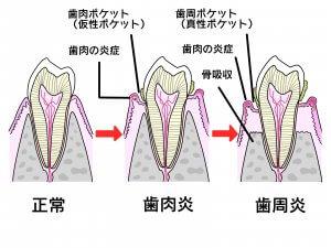 50代女性の歯の健康 歯周病の進行