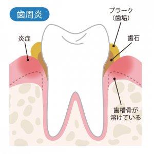 50代女性の歯の健康 歯肉炎の図解