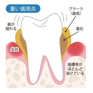 50代女性の歯の健康 重い歯肉炎の図解