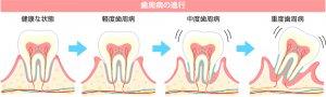 50代女性の歯の健康 歯周病の進行の図