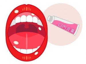 50代女性 口内炎 お薬