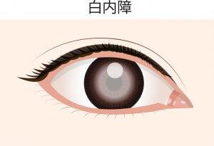 50代女性 目の病気 白内障原因