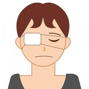 50代女性 目の病気 白内障の手術後